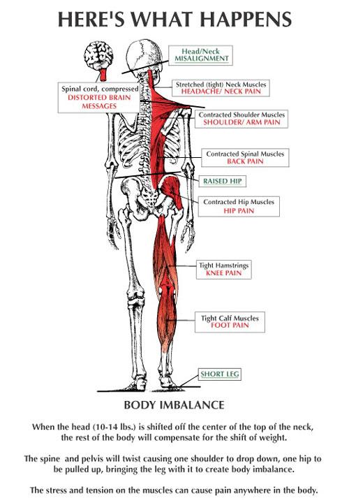 Body Imbalance