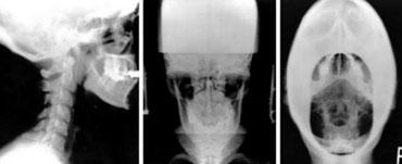 Atlas X-rays